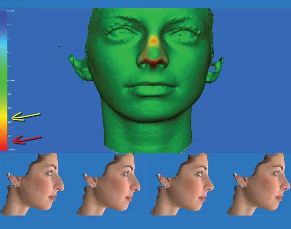 Εικόνες από το Vectra 3D Imaging System