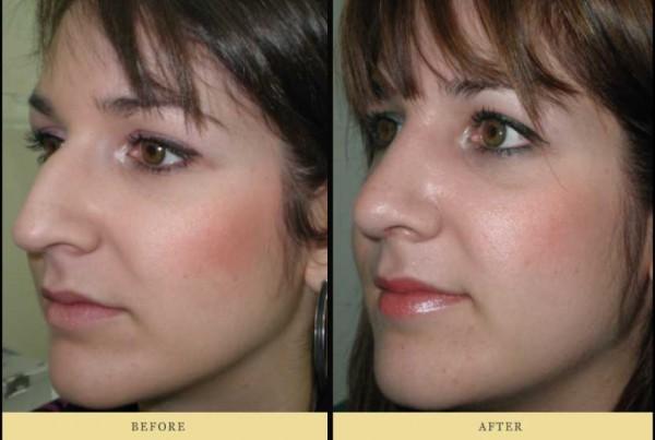 ρινοπλαστική Πριν και μετά: γυναίκα Αριστερή όψη