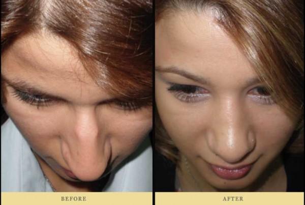 επανεπέμβαση ρινοπλαστικής για διόρθωση εμφάνισης της μύτης