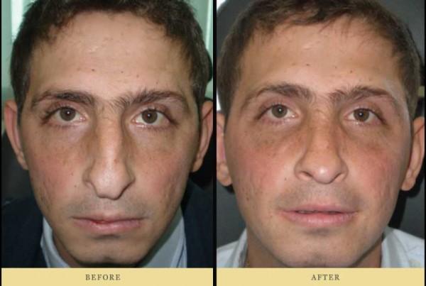 Φωτογραφίες πριν και μετά τη ρινοπλαστική επέμβαση