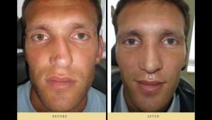 Ρινοπλαστικη επέμβαση : Το αποτέλεσμα πρέπει να είναι ένα αρμονικό πρόσωπο
