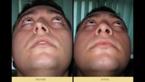 στραβό διάφραγμα & ρινοπλαστική για τέλειο αισθητικό και λειτουργικό αποτέλεσμα
