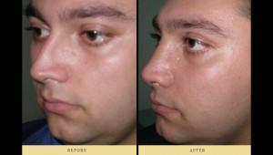 Στραβό διάφραγμα μύτης : συνδυασμός ρινοπλαστικής και διόρθωση στραβού διαφράγματος από ειδικό χειρουργό ΩΡΛ