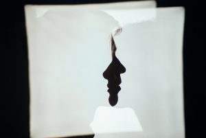 Ρινοπλαστική - πλαστική στη μύτη : Εμπειρίες - Μαρτυρίες ασθενών