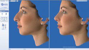 ρινοπλαστική -πλαστική στη μύτη : ερωτήσεις ασθενών