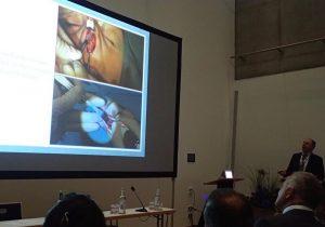 rhinoplastiki-piezo-mireas-regensburg-annual-congress-european-academy-of-facial-plastic-surgery-2018.2